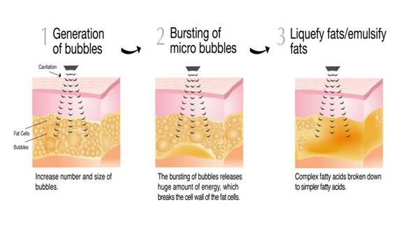 Fat Cavitation